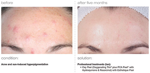 acne-sun-induced-hyperpigmentation